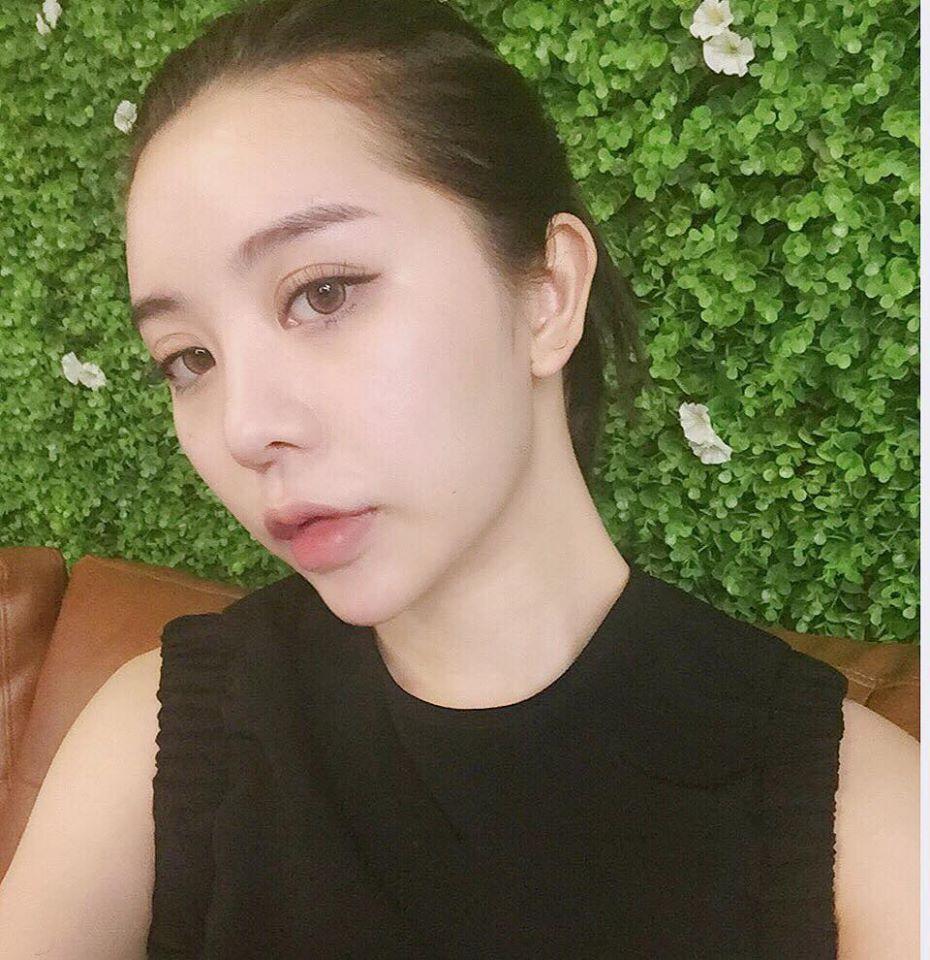 3 kiểu tiêm môi đang được con gái Việt yêu thích nhất & những điều bạn cần tìm hiểu - Ảnh 9.