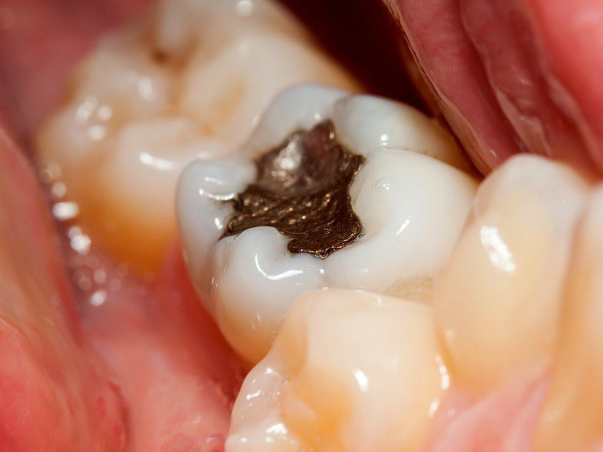 Hàn răng nhiều lần sẽ khiến bạn nhận một kết cục vô cùng đáng sợ - Ảnh 3.