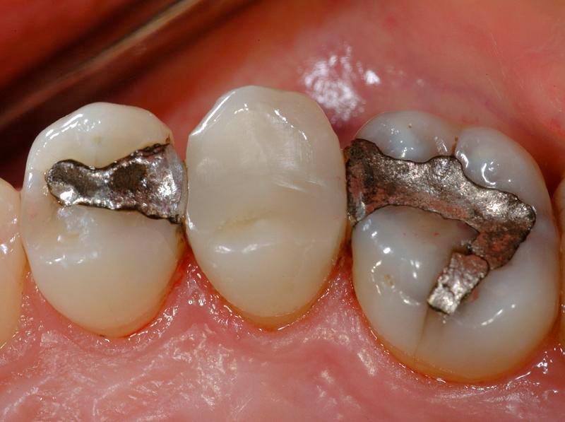 Hàn răng nhiều lần sẽ khiến bạn nhận một kết cục vô cùng đáng sợ - Ảnh 1.