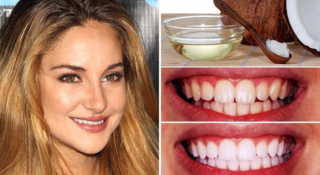 Mẹo làm trắng răng bằng dầu dừa CỰC NHANH CHÓNG!! 2