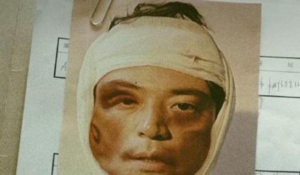 Giật mình với gương mặt bầm dập của Hoắc Kiến Hoa - Ảnh 2.