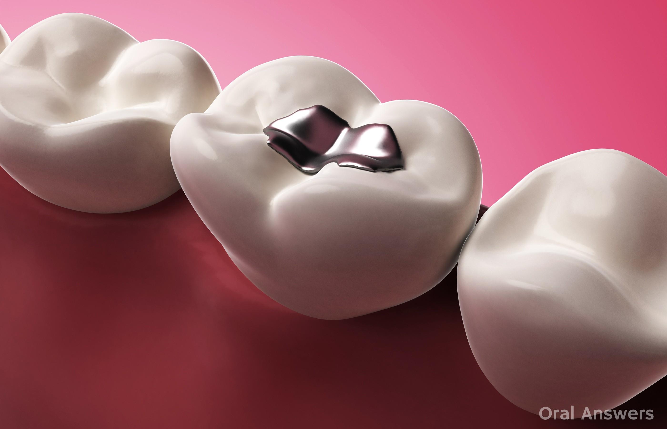 Hàn răng nhiều lần sẽ khiến bạn nhận một kết cục vô cùng đáng sợ - Ảnh 2.