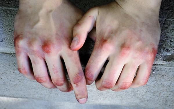 Đừng coi thường những vết bầm đột nhiên xuất hiện trên da, bệnh nghiêm trọng đấy! - Ảnh 2.