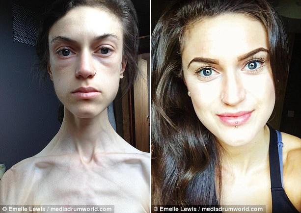 Từng bị gọi là bộ xương di động và nhiều phen tưởng chết, cô gái trẻ 32 kg thay đổi không ai nhận ra - Ảnh 1.