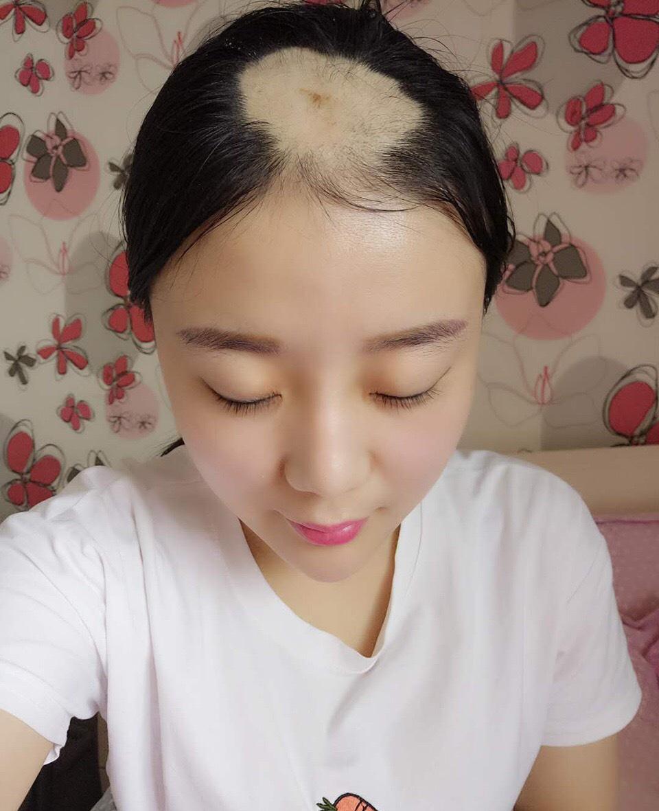 Cô gái mất cả mảng tóc vì ăn ngô bằng khoan năm nào giờ đã xinh