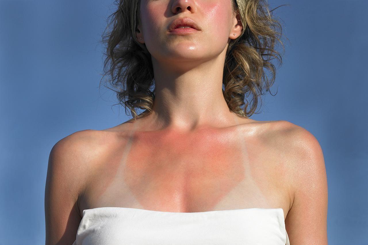 Cấp cứu làn da cháy nắng bằng những cách nhanh gọn và hiệu quả nhất - Ảnh 6.