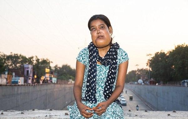 Ấn Độ: Căn bệnh quái ác khiến thiếu nữ mang khuôn mặt của quỷ dữ và bị cả xã hội ruồng bỏ - Ảnh 1.