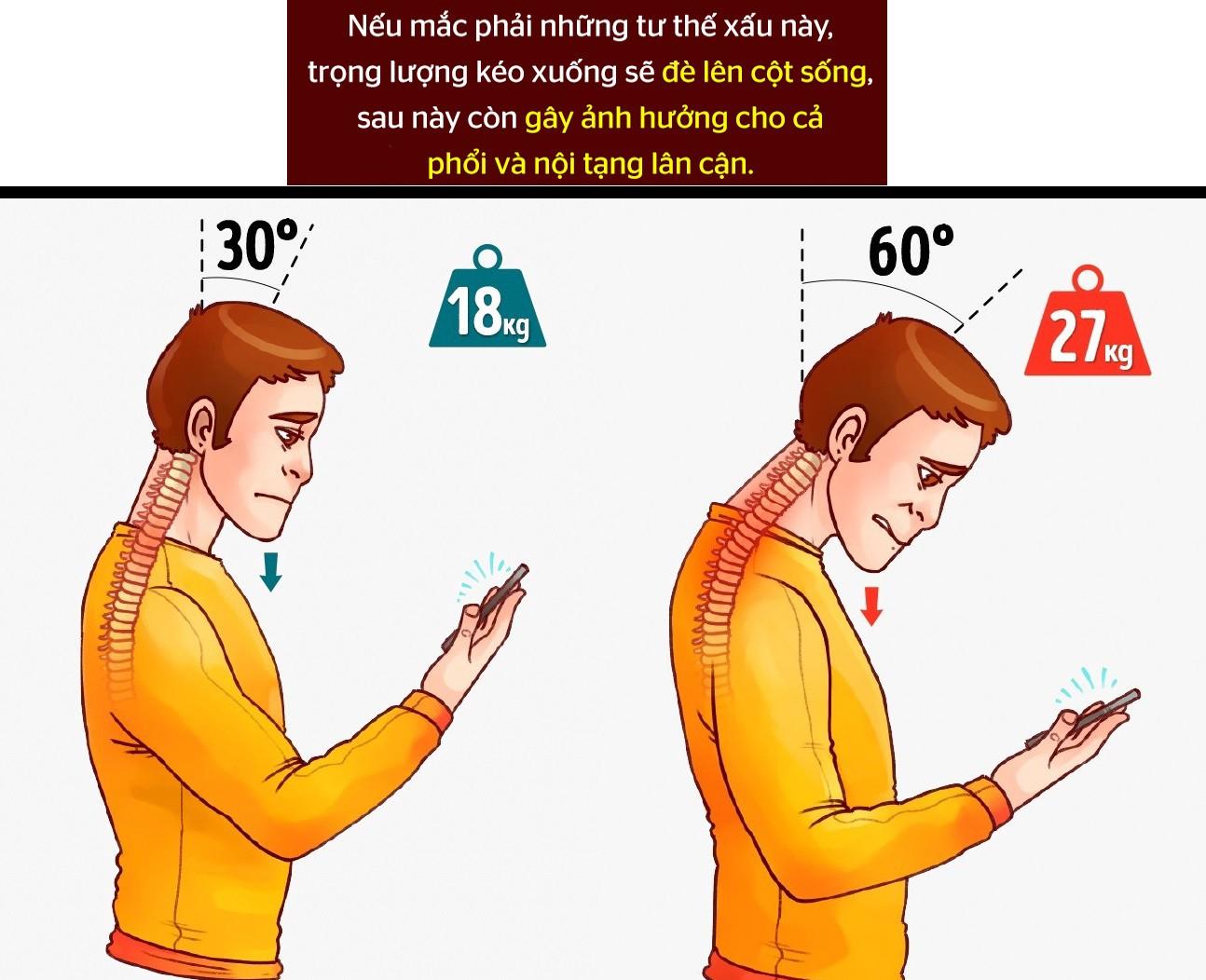 Cong vẹo cột sống vì nhìn smartphone sai tư thế - Làm sao để sửa ngay trong 5 phút? - Ảnh 1.