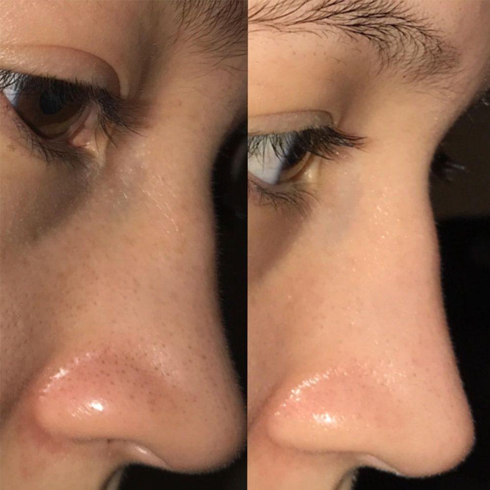 Cô nàng này đã gây kinh ngạc khi trị sạch bong kin kít mụn đầu đen và đây là 3 sản phẩm cô sử dụng - Ảnh 1.