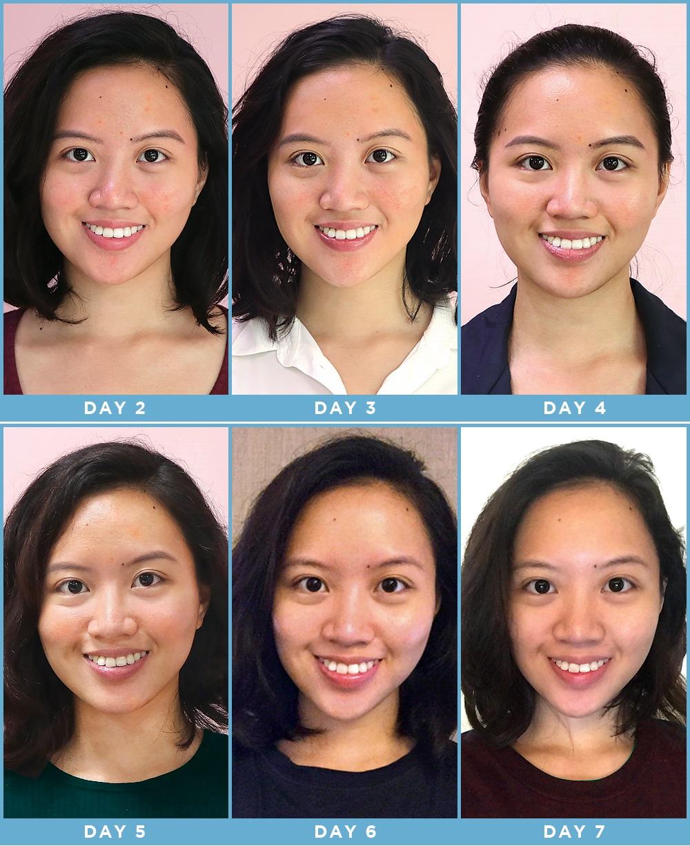 Cô nàng này đã dùng thử mặt nạ công nghệ ánh sáng và đây là kết quả kì diệu - Ảnh 9