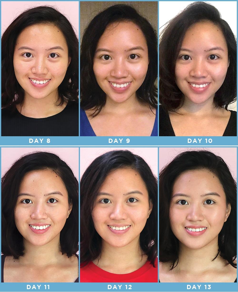 Cô nàng này đã dùng thử mặt nạ công nghệ ánh sáng và đây là kết quả kì diệu - Ảnh 10