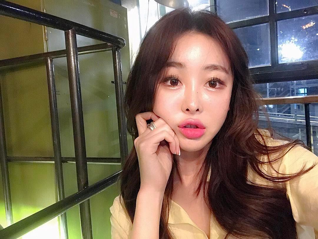 Con gái từ Hàn sang Việt cứ đập cả mặt với tiêm má tròn căng, lẽ nào xu hướng mặt phù sắp tiếm ngôi mặt V-line? - Ảnh 12.