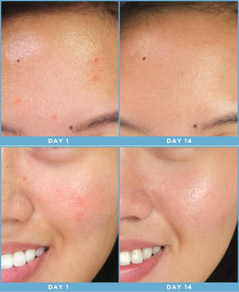 Cô nàng này đã dùng thử mặt nạ công nghệ ánh sáng và đây là kết quả kì diệu - Ảnh 12.