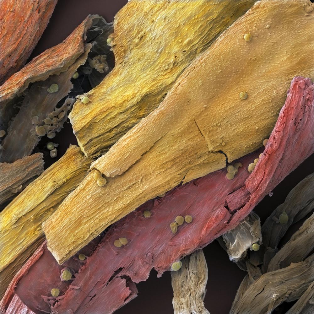 Ai cũng từng nhìn, ăn các thứ này nhưng mấy ai biết dưới kính hiển vi chúng đáng sợ như thế nào - Ảnh 9.