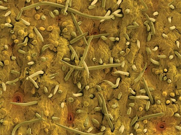 Ai cũng từng nhìn, ăn các thứ này nhưng mấy ai biết dưới kính hiển vi chúng đáng sợ như thế nào - Ảnh 3.