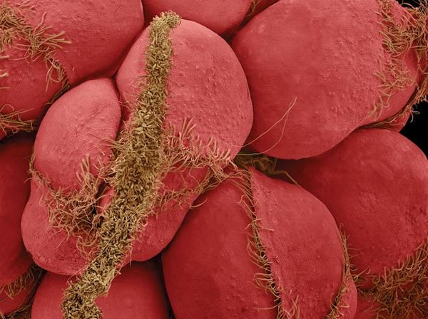 Ai cũng từng nhìn, ăn các thứ này nhưng mấy ai biết dưới kính hiển vi chúng đáng sợ như thế nào - Ảnh 5.