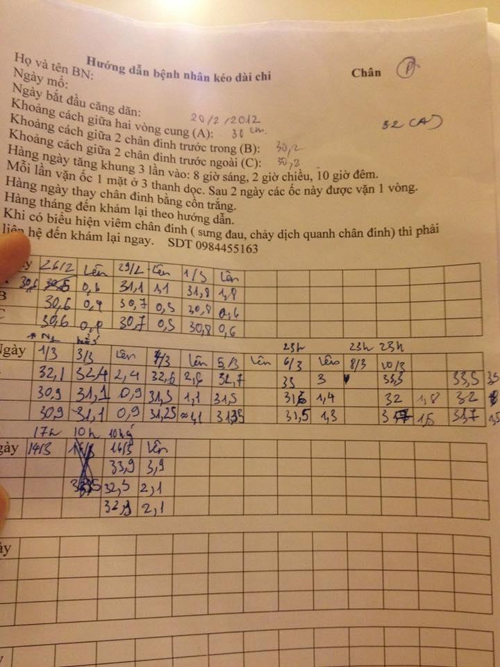 Nhật ký kéo dài chân từ 1m67 đến 1m76 (9 cm) của chàng trai Hà Nội - Ảnh 11.