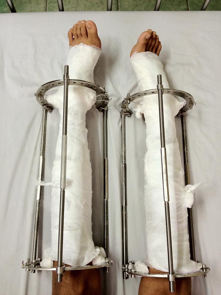 Nhật ký kéo dài chân từ 1m67 đến 1m76 (9 cm) của chàng trai Hà Nội - Ảnh 3.
