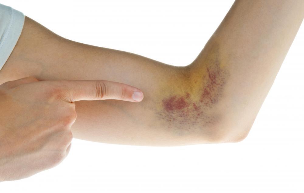 Đừng xem thường những vết bầm tím trên da bởi nó có thể là dấu hiệu cảnh báo nhiều bệnh nguy hiểm - Ảnh 3.