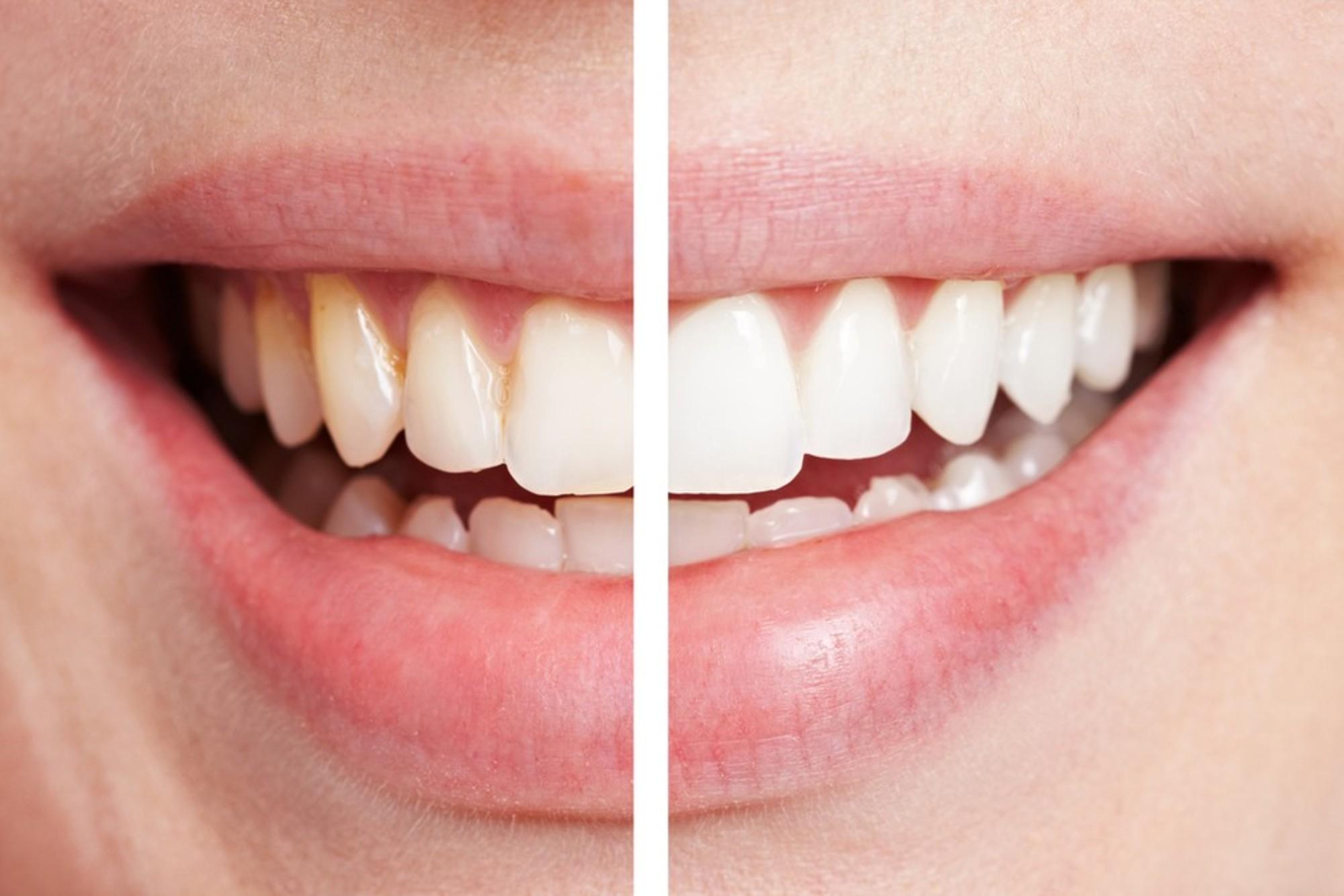 Tin vui cho Hội thích nhai kẹo cao su: Đây là thói quen cực tốt cho sức khỏe - Ảnh 2.