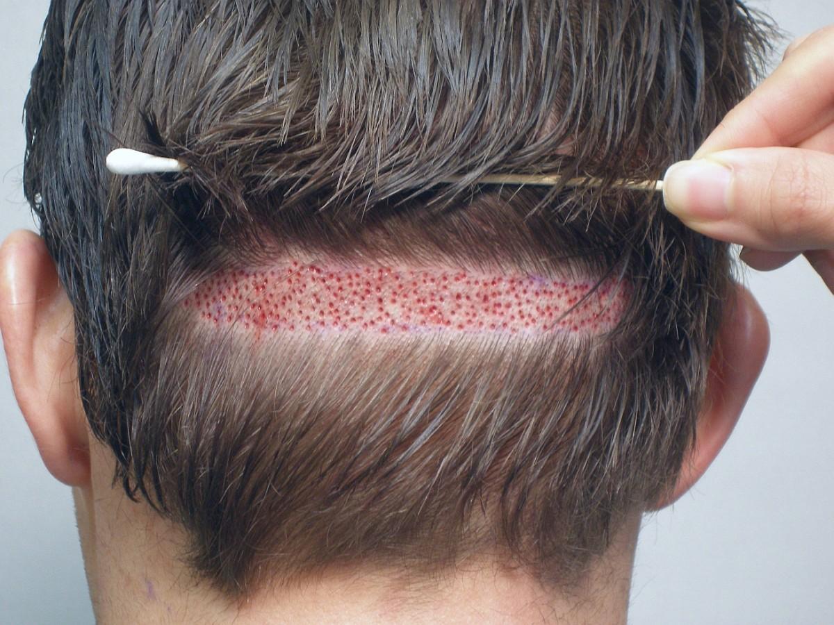 Hóa ra cận cảnh quy trình cấy tóc lại tỉ mỉ và rắc rối thế này - Ảnh 5.