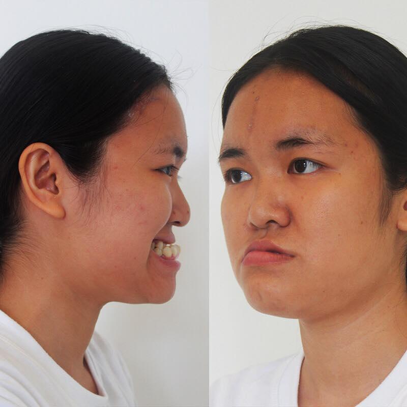 Nữ sinh ĐH Thương mại lột xác 180 độ, đẹp như lai Tây sau phẫu thuật thẩm mỹ - Ảnh 2.