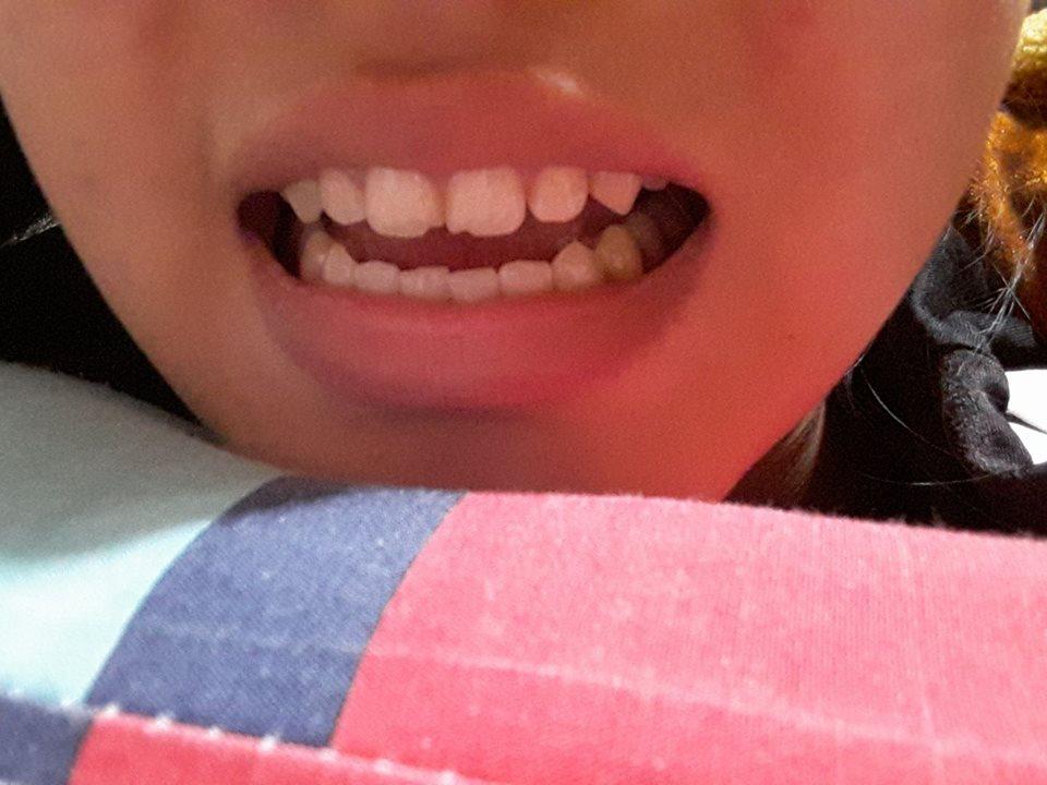 Răng bị mẻ chỉ vì ăn bánh tráng, tưởng chuyện đùa mà lại có thật đấy! - Ảnh 2.