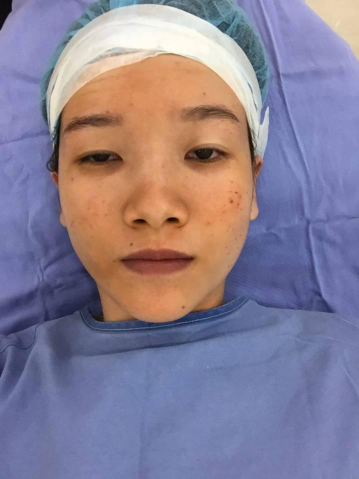 Màn lột xác bất ngờ của nữ sinh ĐH Y khoa Vinh từng bị nhà người yêu từ chối vì có đôi mắt lươn - Ảnh 4.