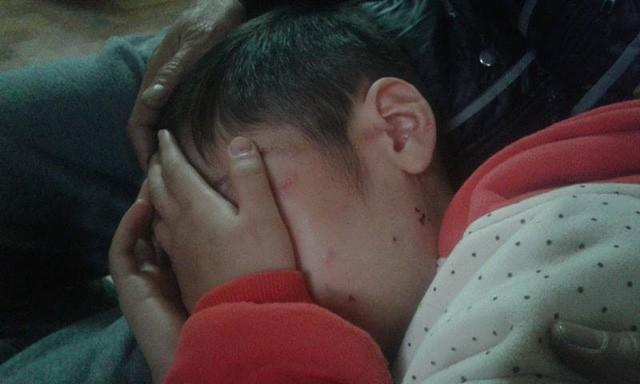 Vì sao mẹ ruột không biết con trai 10 tuổi bị bố và mẹ kế bạo hành dã man gần 2 năm trời? - Ảnh 3.
