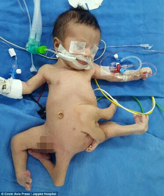 Em bé bạch tuộc chào đời với 8 chi tách biệt - Ảnh 1.