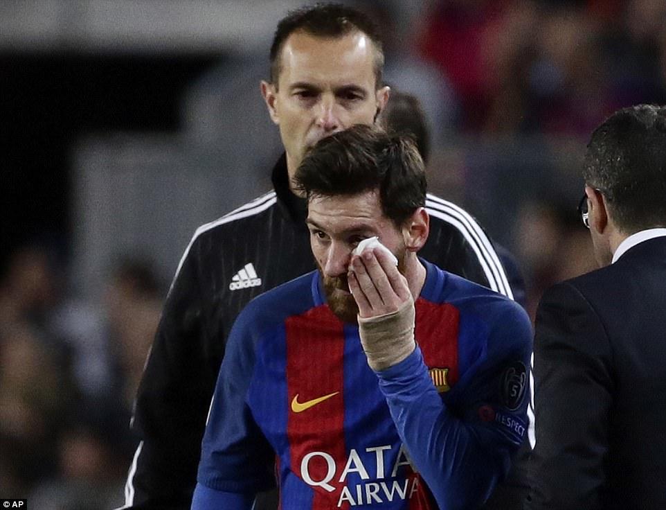 Không có phép màu, Barca chính thức chia tay Champions League - Ảnh 7.