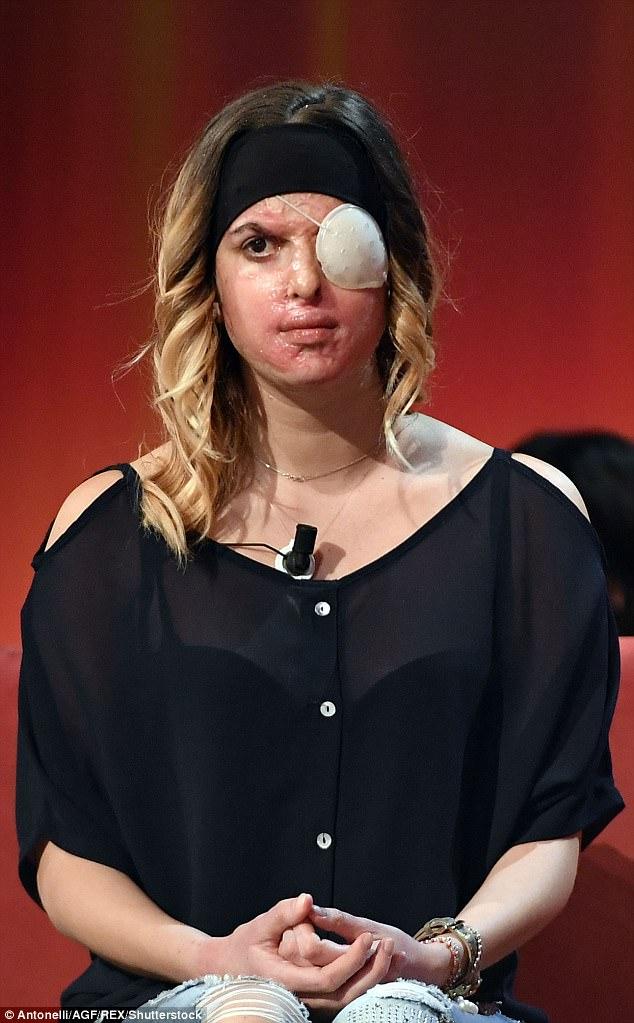 Thí sinh Hoa hậu Ý công khai gương mặt bị hủy hoại do bạn trai cũ tạt axit - Ảnh 4.