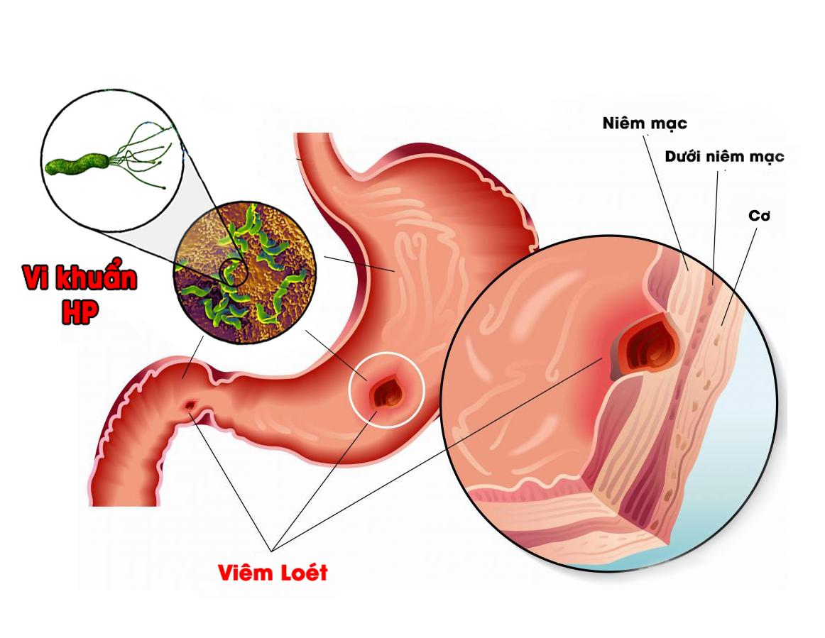 6 sai lầm mà người bị đau dạ dày nào cũng mắc phải khiến bệnh ngày càng nặng thêm - Ảnh 2.