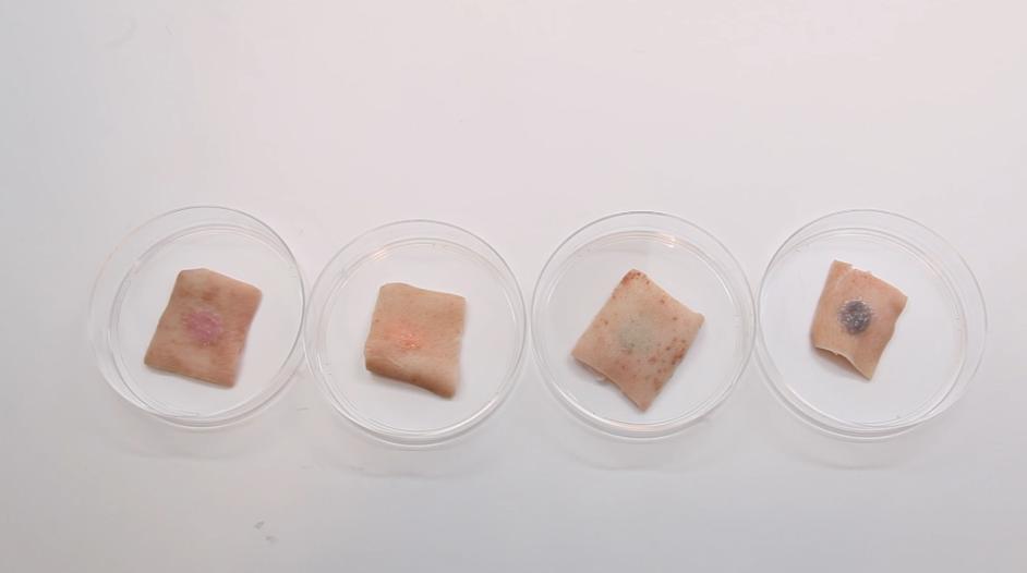 Hình xăm chất chơi tự đổi màu theo chỉ số đường trong máu - Ảnh 4.