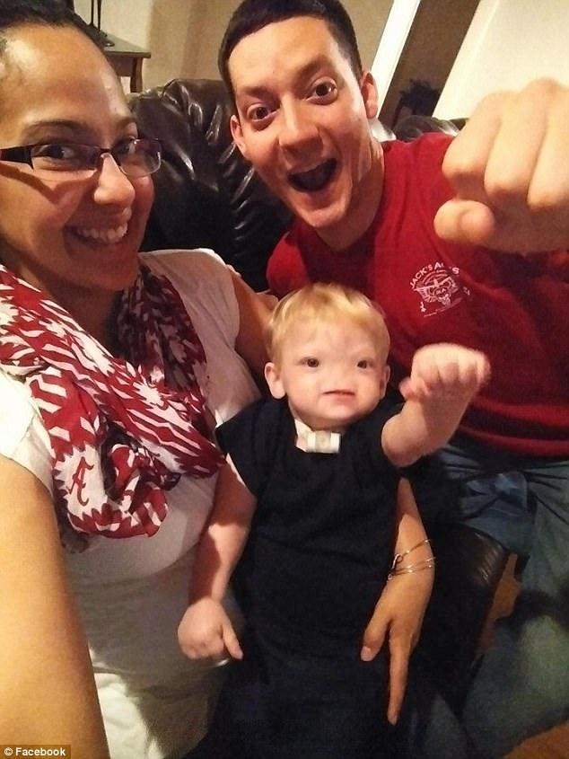 Em bé sinh ra không có mũi, cuối cùng, bé đã qua đời sau 2 năm chiến đấu với bệnh tật - Ảnh 3.