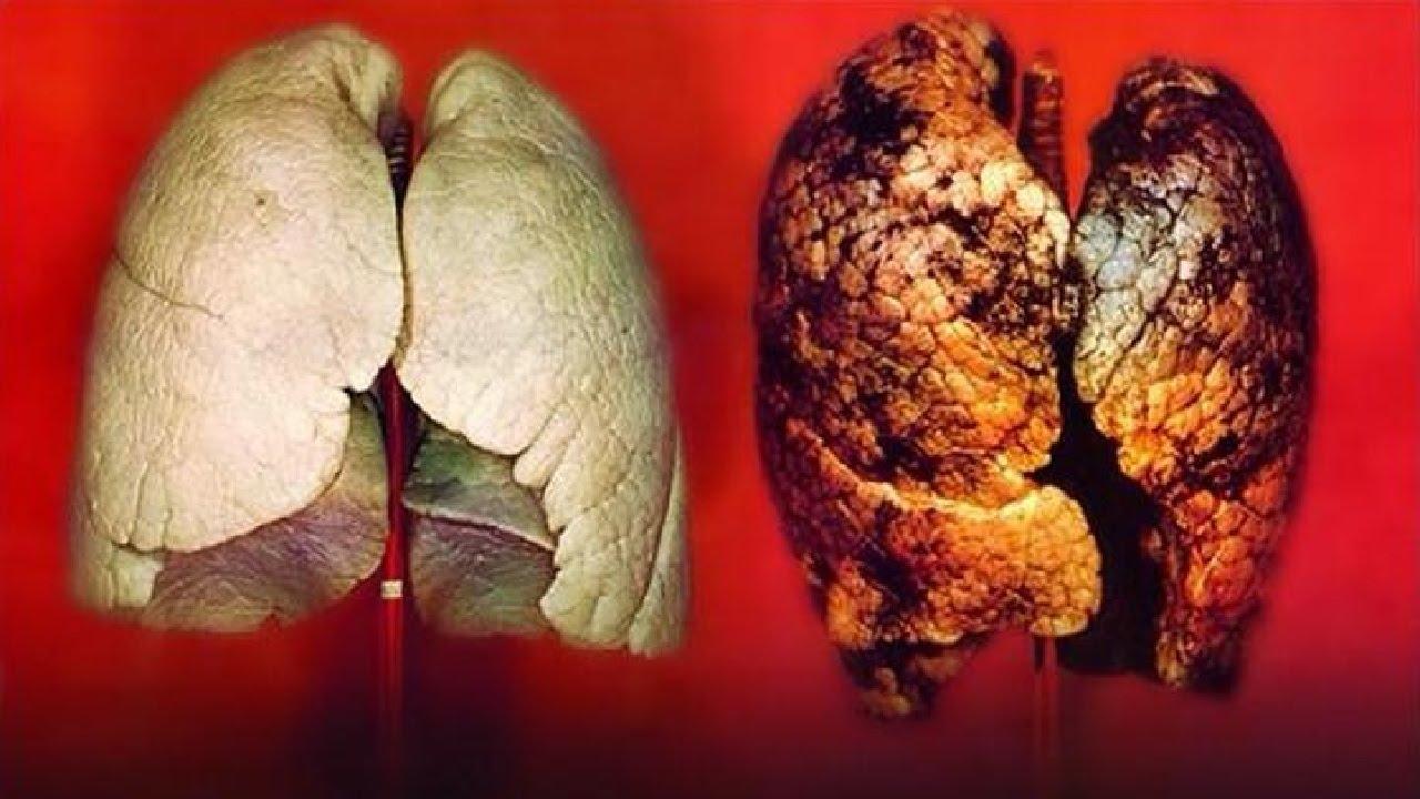 Dù nói nhiều lắm rồi nhưng bạn vẫn sẽ rùng mình về những tác hại này của việc hút thuốc lá - Ảnh 6.