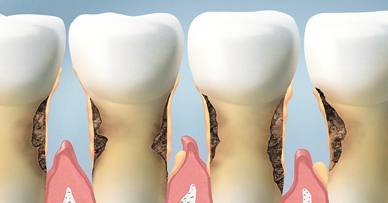 Bạn sẽ không dám lười đánh răng thêm lần nào nữa nếu biết tác hại kinh người sau - Ảnh 1.