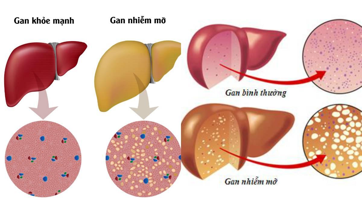 6 căn bệnh nguy hiểm mà người thừa cân, béo phì có nguy cơ cao mắc phải - Ảnh 3.