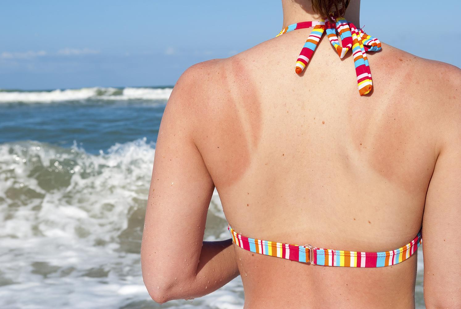 Cấp cứu làn da cháy nắng bằng những cách nhanh gọn và hiệu quả nhất - Ảnh 1.