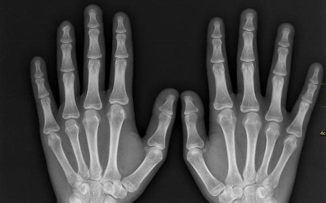 10 hội chứng sợ hãi vô lý đùng đùng của con người - Ảnh 13.