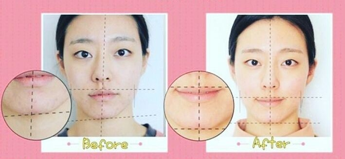 Bí quyết mặt thon gọn của sao Hàn là nhờ cả vào phương pháp massage xương độc đáo này - Ảnh 8.