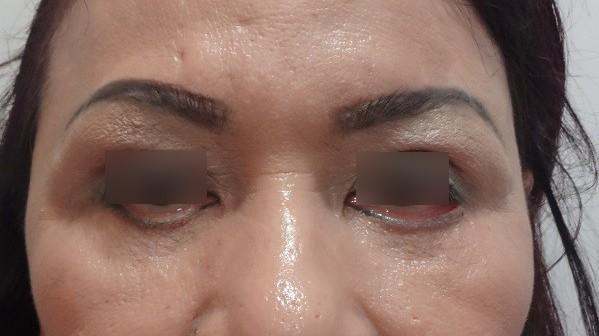 Cắt mí mắt: tuy chỉ là tiểu phẫu nhưng vẫn dễ tiền mất tật mang nếu bạn chọn làm nhầm chỗ - Ảnh 8.