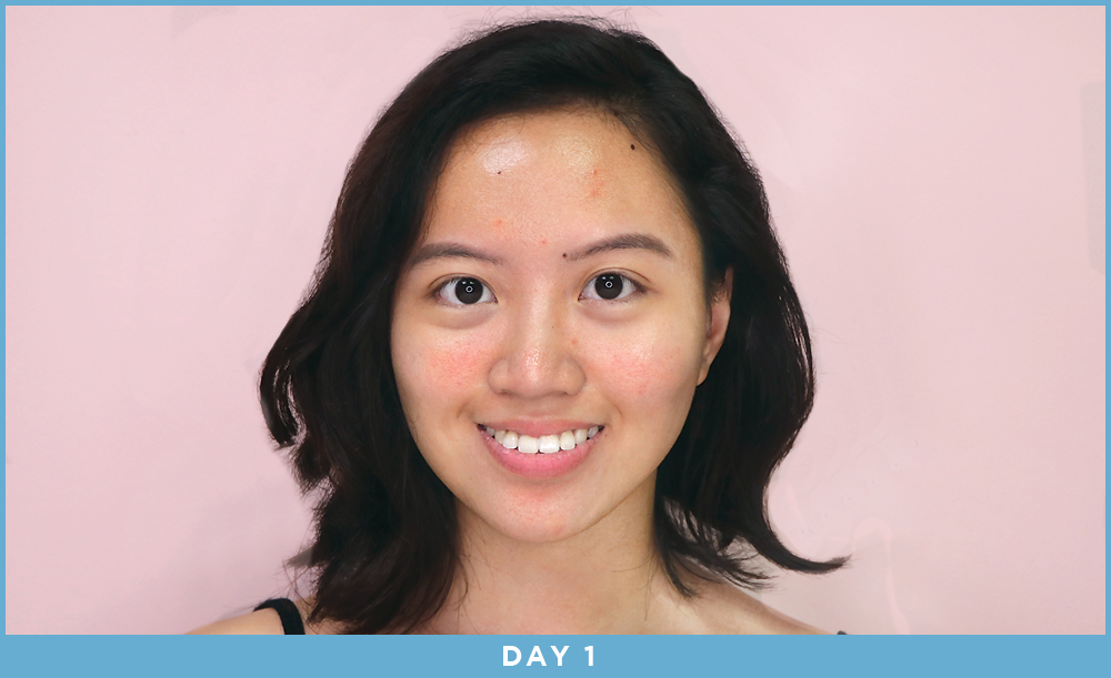 Cô nàng này đã dùng thử mặt nạ công nghệ ánh sáng và đây là kết quả kì diệu - Ảnh 8.