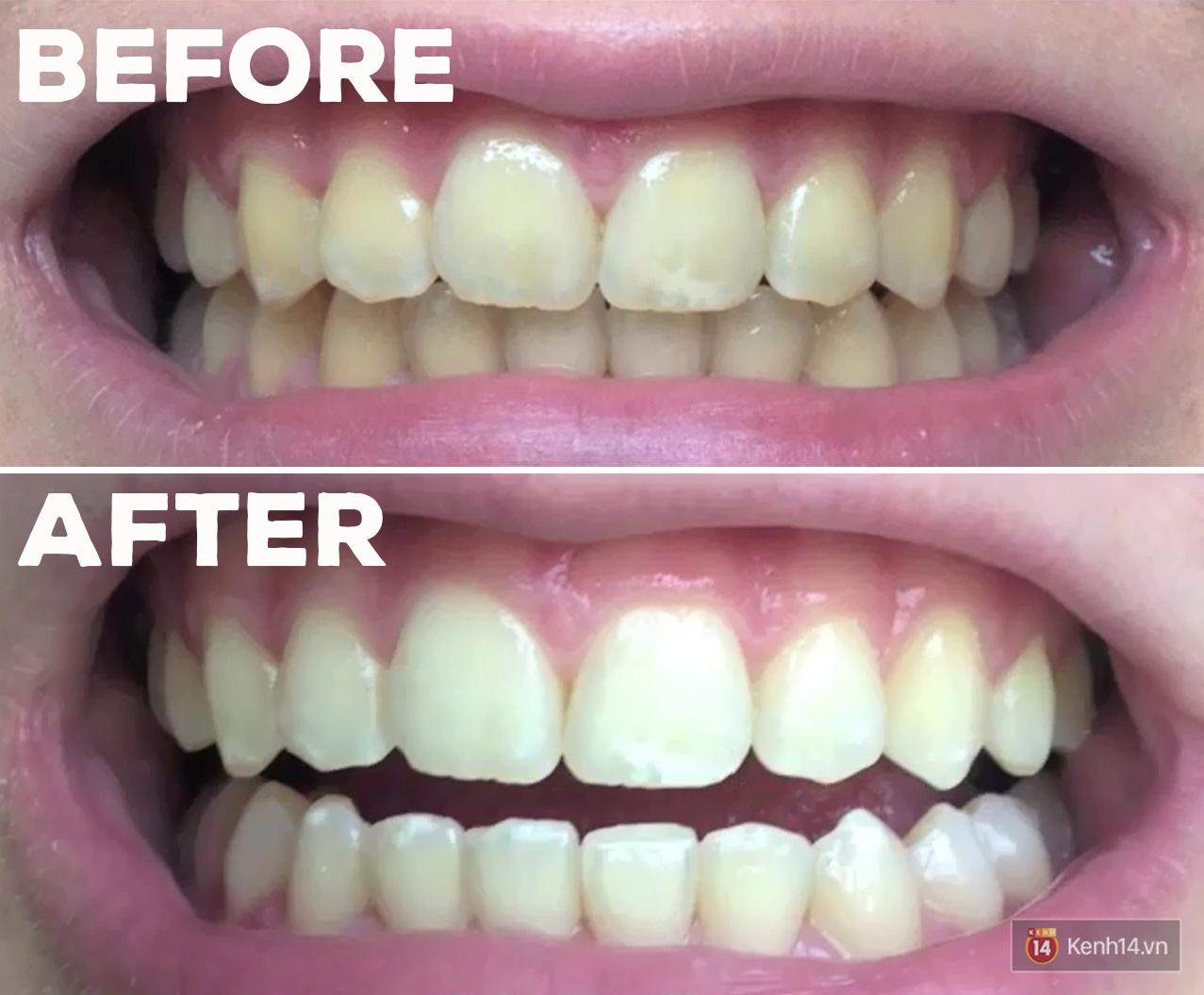 Các bạn trẻ trên thế giới đang dùng những phương pháp tẩy trắng răng gì? - Ảnh 3.