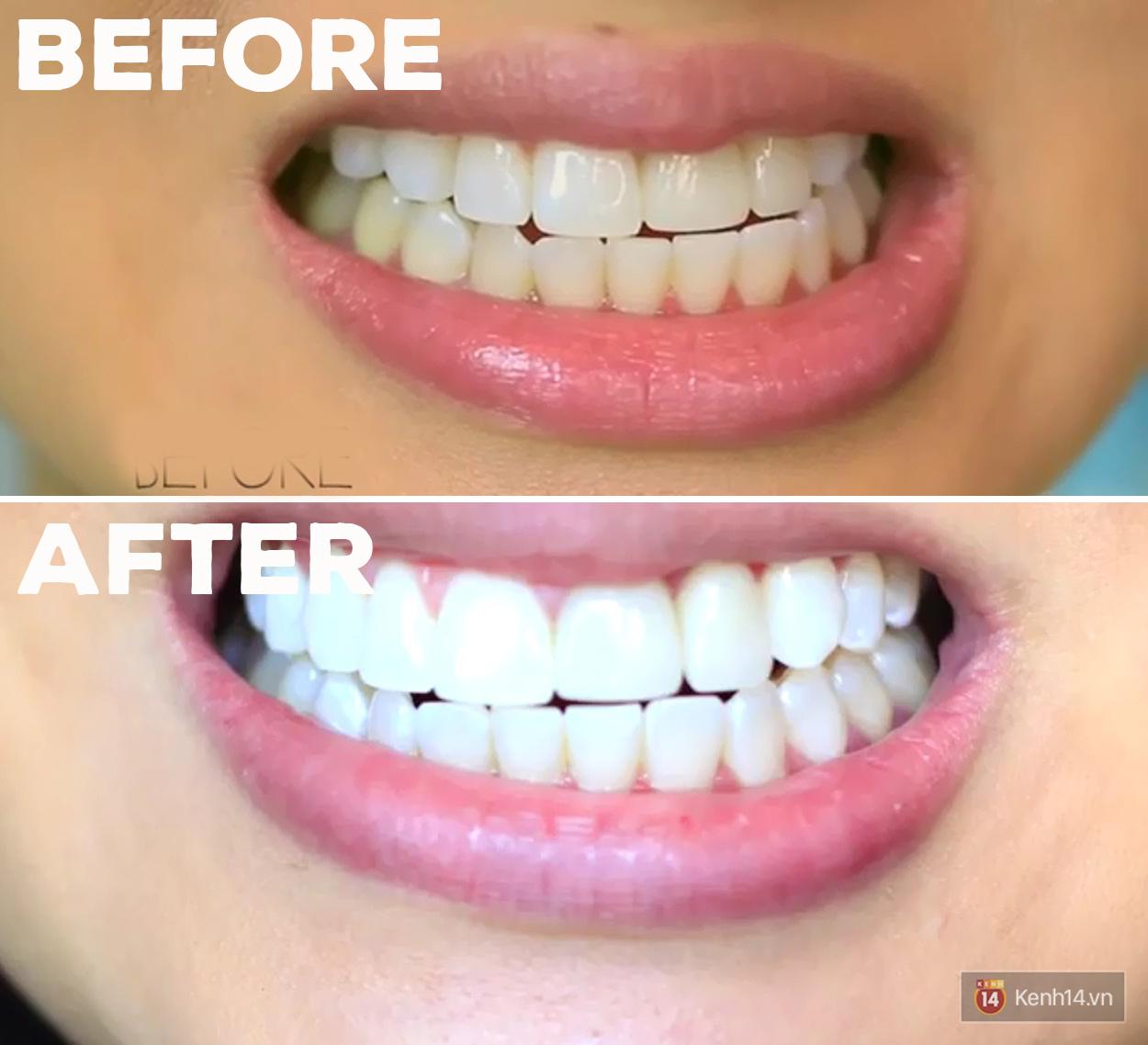 Các bạn trẻ trên thế giới đang dùng những phương pháp tẩy trắng răng gì? - Ảnh 7.