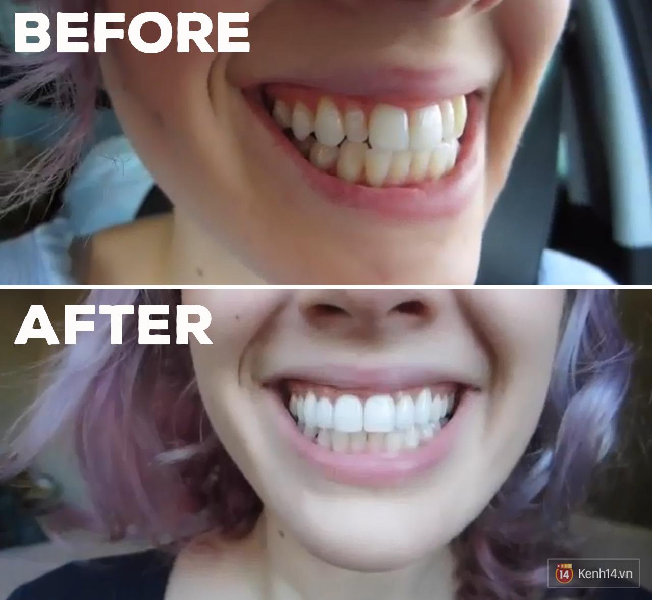 Các bạn trẻ trên thế giới đang dùng những phương pháp tẩy trắng răng gì? - Ảnh 14.