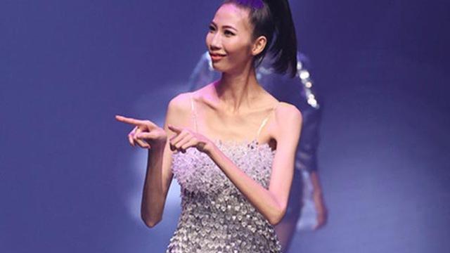 Người mẫu gầy giơ xương: Cơn ác mộng dai dẳng mà ngành công nghiệp thời trang đã tạo ra! - Ảnh 8.