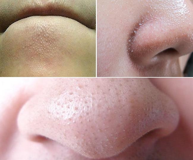Những chấm li ti trên da ai cũng có: Cứ tưởng là mụn hóa ra không phải - Ảnh 1.