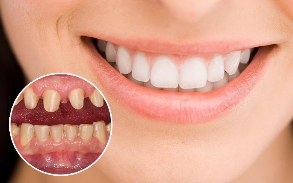 Kết quả hình ảnh cho Niềng răng sau khi bọc răng sứ thì có được chấp nhận