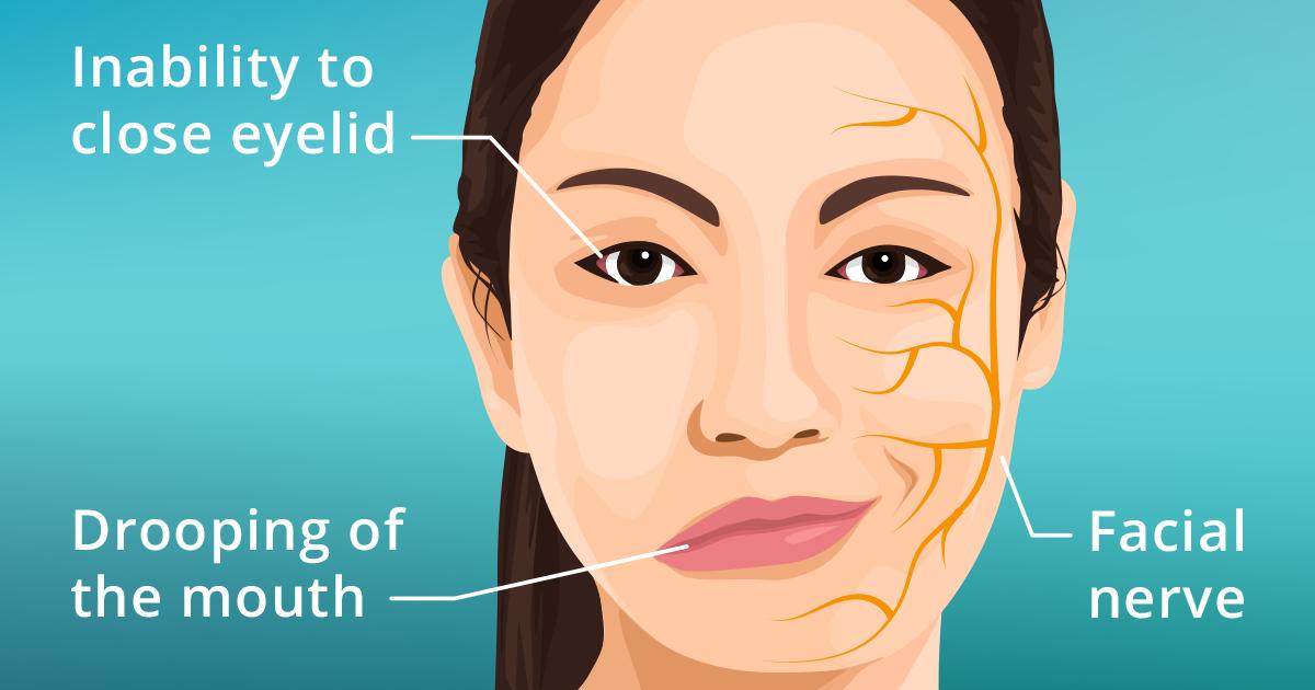 Hội chứng liệt nửa cơ mặt mà Angelina Jolie mắc phải có thể xảy ra ở người trẻ - Ảnh 2.